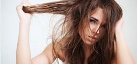 Top 10 Hair Problems